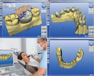ecole de prothesiste dentaire nancy Btms prothésiste dentaire vous acceptez l'utilisation des cookies pour vous proposer notamment des publicités ciblées en fonction de vos centres d'intérêt metz nancy bac+2 université paramédical santé grand est l'etudiant en un clic facebook twitter.
