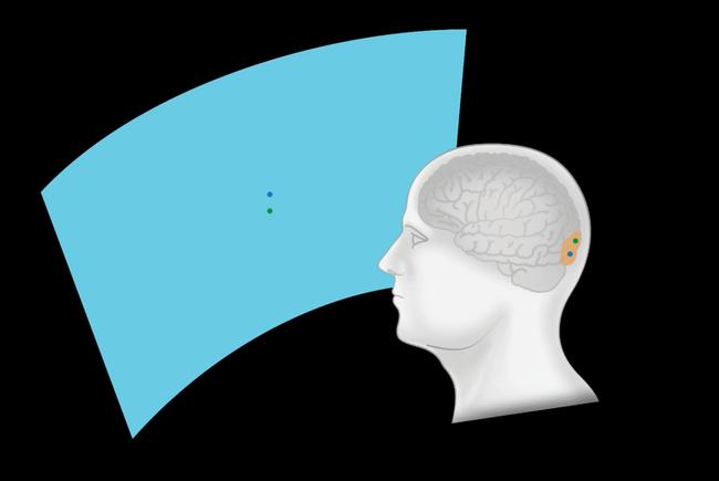 Elon Musk vante les avancées de son projet d'implant cérébral